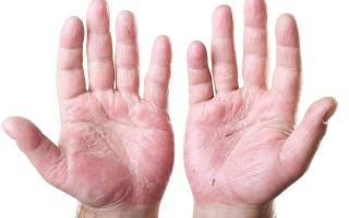 Молочница на пальцах рук лечение