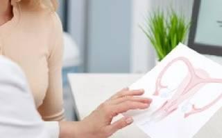 Как лечить цистит при опущении матки