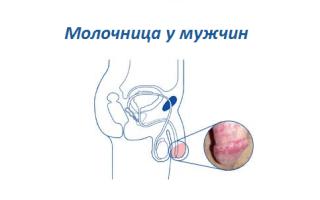 Мази при лечении мужской молочнице