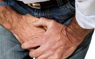 От чего бывает молочница у мужчин лечение