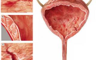 Чем и как лечить интерстициальный цистит и гиперактивный мочевой пузырь