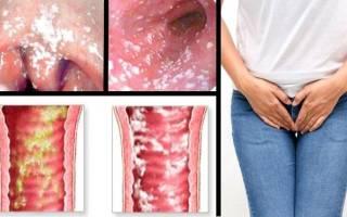 Народные средства лечения молочницы и грибков
