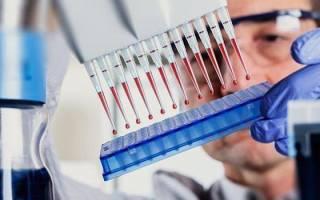 Как отличить маточное кровотечение от цистита с кровью