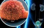 Как лечить болезнь цистит с полипами