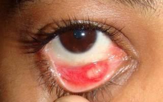Молочница на глазах симптомы и лечение