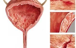 Как лечить цистит и почки у женщин