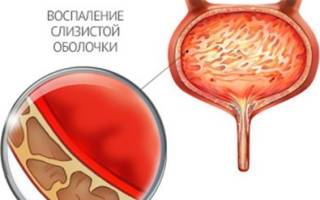Хронический цистит у женщин и уретрит у женщин