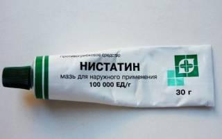 Лечение нистатиновой мазью при молочнице