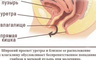 Беременность началась с цистита и молочницы