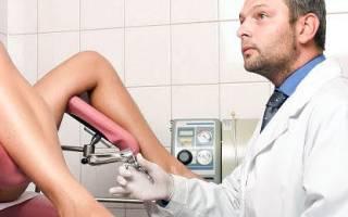 Чем лечить цистит после аборта