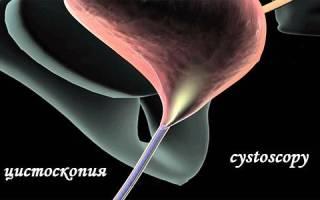 Делают ли цистоскопию при остром цистите