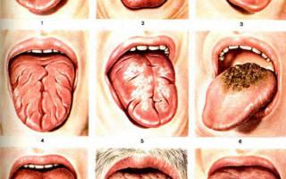 Препараты для лечения молочницы во рту у взрослых симптомы