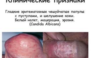 Молочница симптомы фото лечение молочницы у мужчин