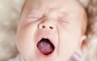 Молочница лечение содой младенца во рту