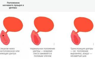 Что делать если при цистите болит влагалище