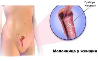 Молочница у женщин причин лечение