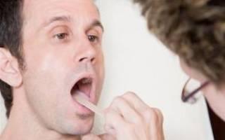 Народное средство лечения молочницы мужчины