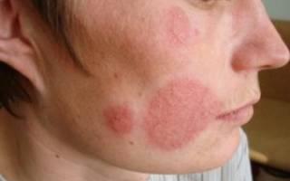 Молочница на лице у женщин лечение