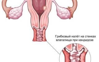 Молочница у женщин симптомы лечение фото таблетки