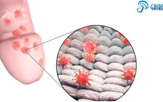 Молочница половой орган у мужчин лечение