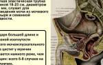 Хронический цистит боли в паху