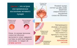 Как нужно лечить хронический цистит у