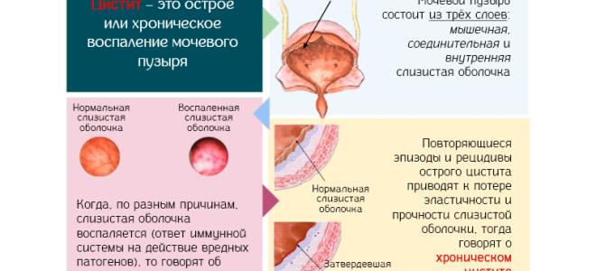 Эффективное средство при хроническом цистите у женщин