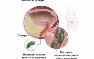 Хламидиоз у женщин при цистите
