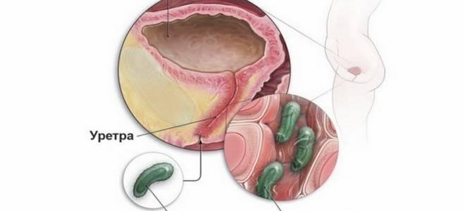 Как лечить хламидиоза и цистита