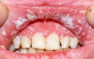 Молочница во рту у взрослого симптомы лечение