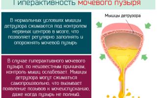 Гиперактивный мочевой пузырь и цистит отличия