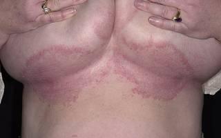 Молочница под грудными железами лечение