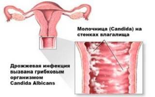 Может ли молочница сама пройти у мужчины без лечения