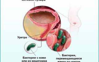 Как лечить цистит если антибиотики не помогают при