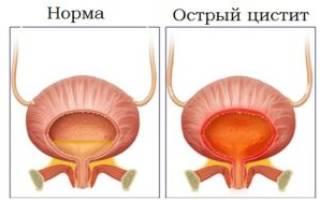 Как лечить цистит у женщин пшеном