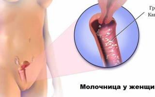 Можно ли выпивать при лечении молочницы