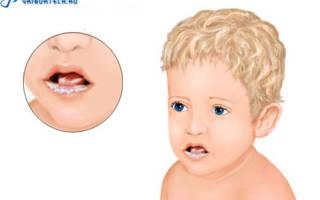 Молочница у ребенка ворту лечение
