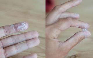 При лечении молочнице сильные выделения