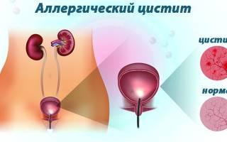 Антигистаминные препараты при аллергическом цистите