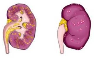 Диффузные изменения в почках хронический цистит